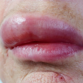 Image gallery lobster allergy for Fish allergy home remedy