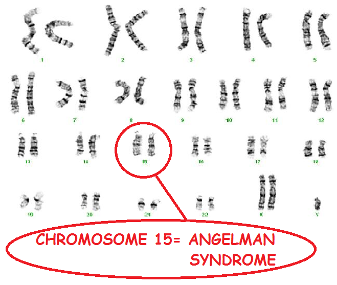 an analysis of angelman syndrome Angelman syndrome (as) is characterized by severe developmental delay or mental retardation, severe speech impairment, gait ataxia and/or tremors in the limbs microcephaly and seizures are common affected individuals also display characteristic demeanor that includes inappropriate laughing.