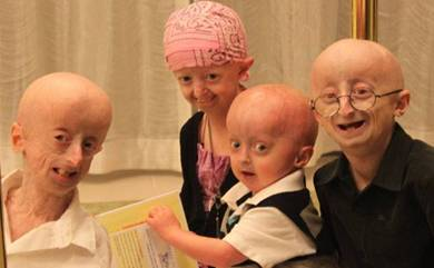 the genetic disease progeria essay Rare diseases are powerful windows into biological processes and can serve as models for the development of therapeutic strategies the progress made on the premature aging disorder progeria is a shining example of the impact.
