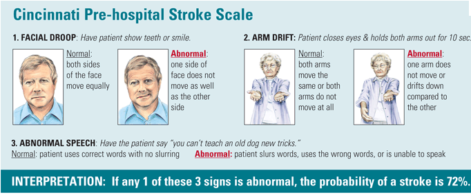 stroke on emaze