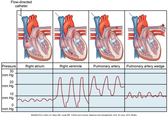 diagram of pulmonary artery catheter gallery