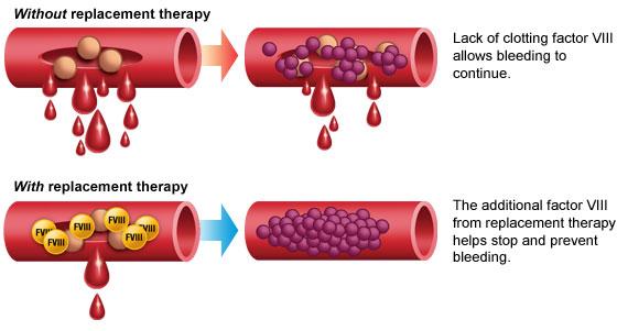 Hemophilia on emaze