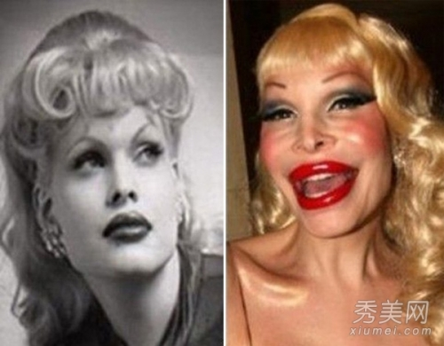 Disadvantage of plastic surgery