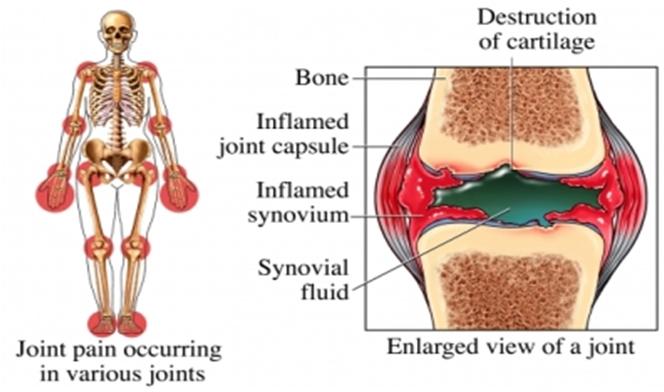 arthritis.pptx