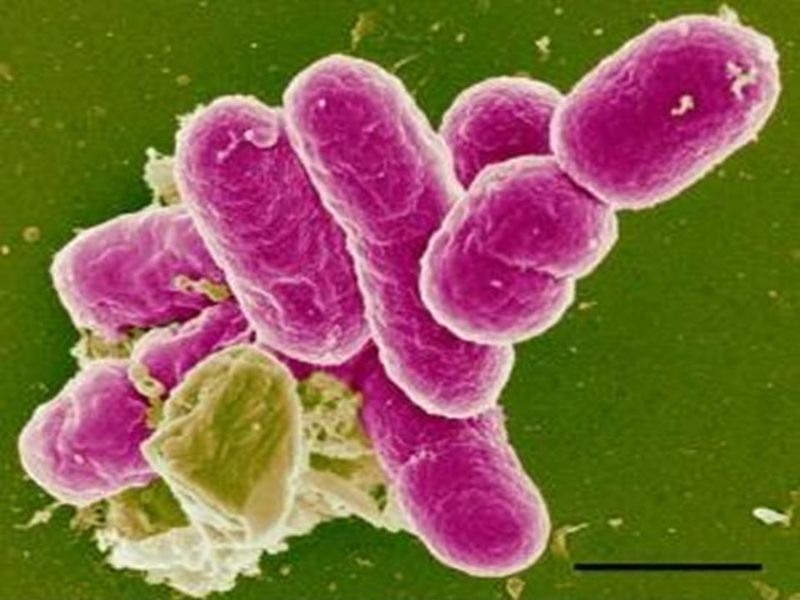 Resultado de imagen para Shigella spp