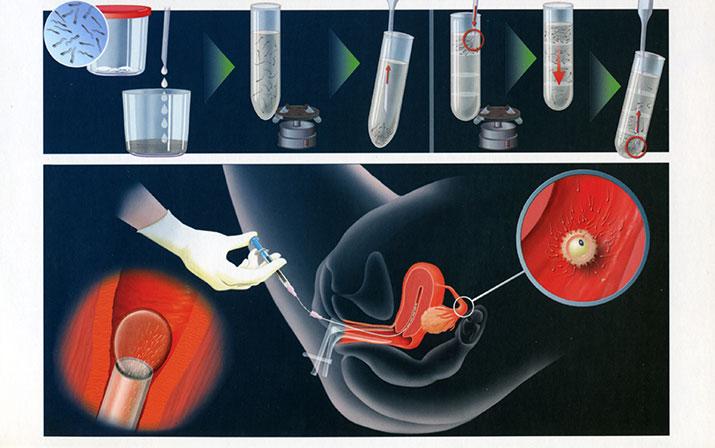 samostoyatelnoe-vvedenie-spermi