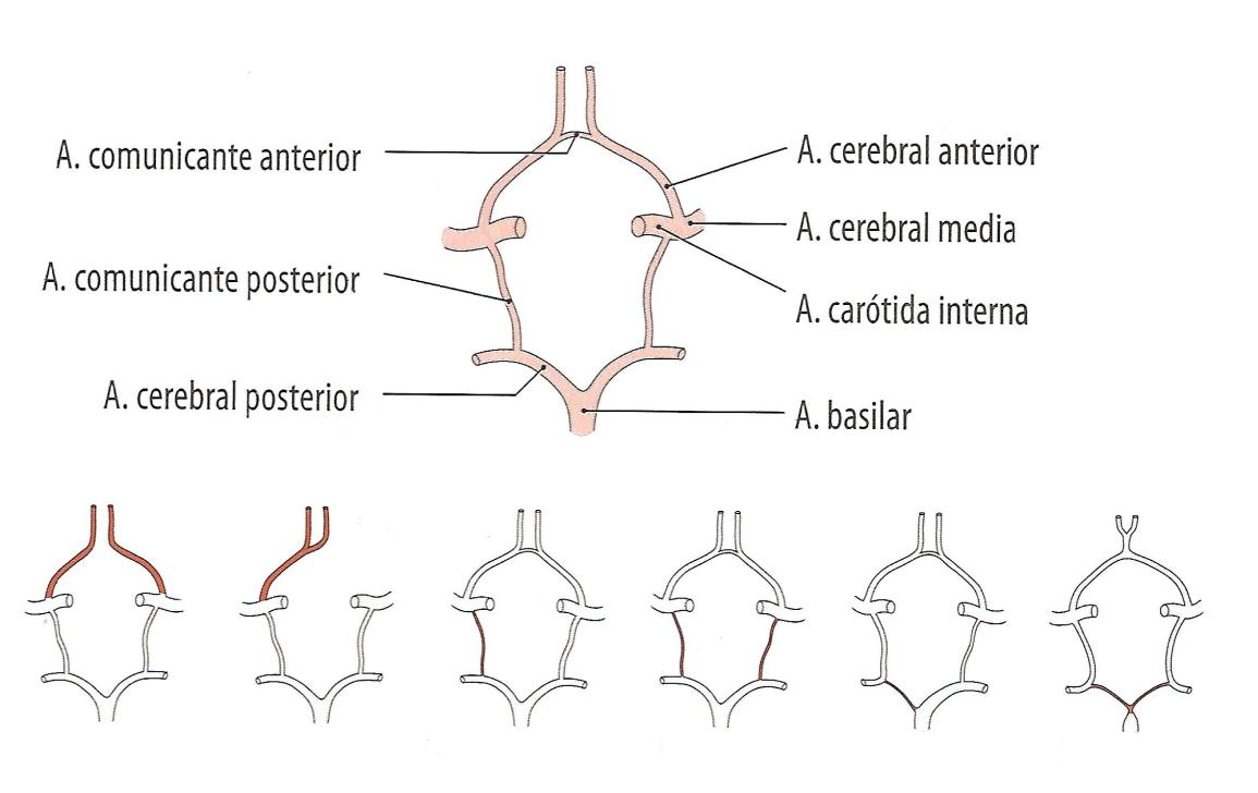Accidentes cerebrovasculares.pptx