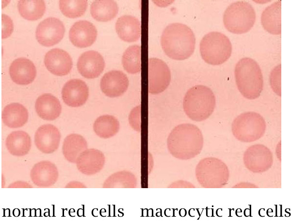 macrocytic anemia Read our article and learn more on medlineplus: vitamin b12 deficiency anemia.