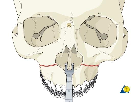 Orthognathic surgery on emaze