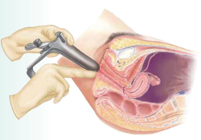 vagina inserción