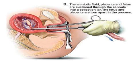 Rezultat slika za Instrumenti za abortus