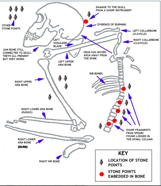 fish spine diagram