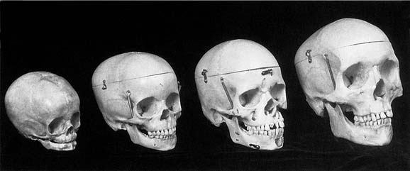Image result for skull development by age diagram