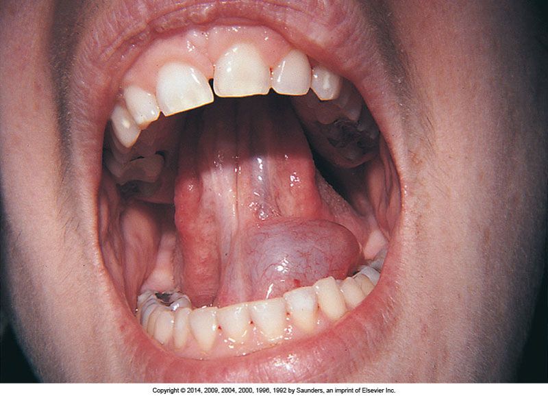 oral pathology Oral pathology clinical review 4 credit hours (4 ces) materials from united states air force 2013 instructional materials in the public domain for dental professionals.