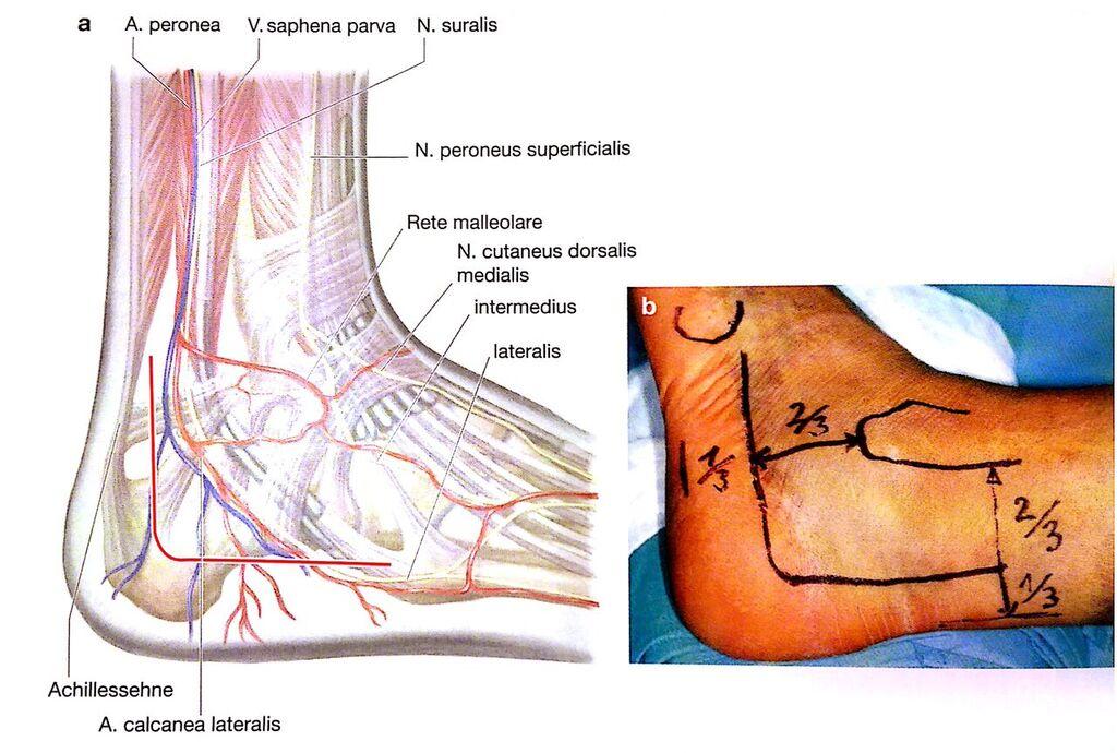 Ausgezeichnet Achillessehne Herkunft Anatomie Ideen - Anatomie Ideen ...