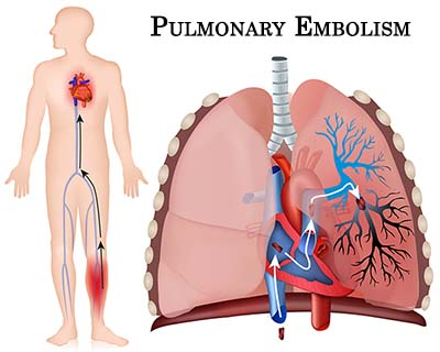 pulmonary emboli - net health book, Skeleton