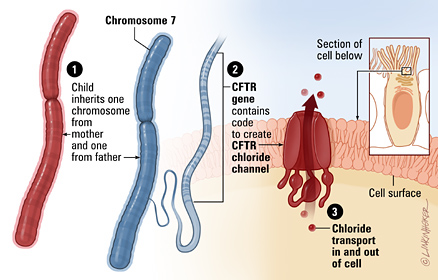 Cystic Fibrosis On Emaze
