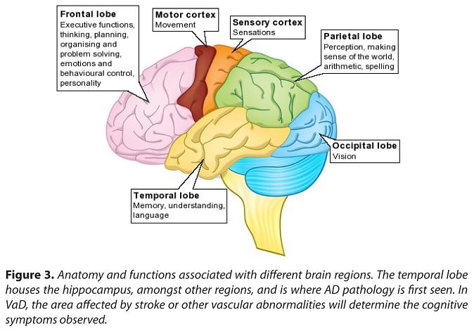 Dementia guide