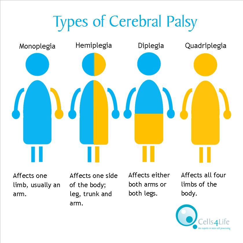 an analysis of the three types of cerebral palsy in children Historically, cerebral palsy has been a condition of children, however, at the present time there is a sizable and growing number of adults with cerebral palsy in addition, there are few internists or general practitioners with expertise in cp.