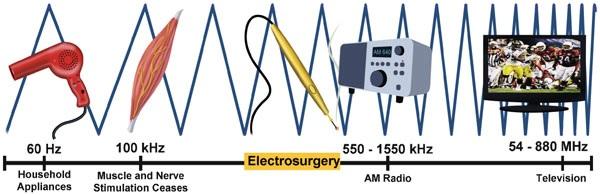 Image result for efecto faradico musculo