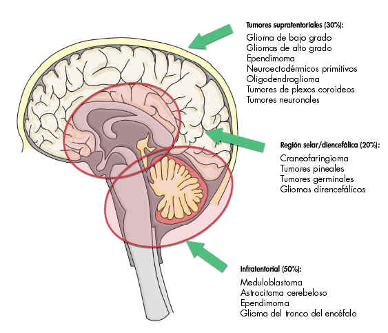hidrocefaliaLa on emaze