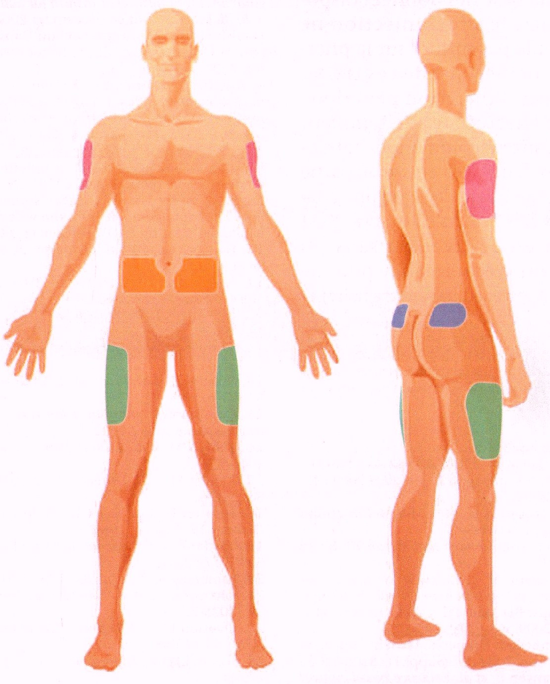 Места для инъекции при диабете