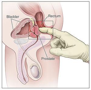 hipertrofia bilobulada de la próstata