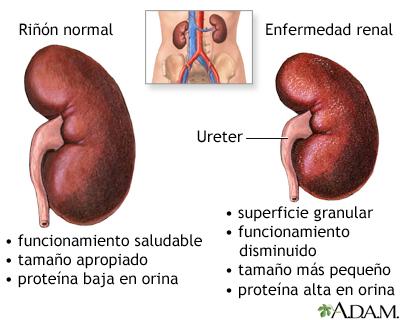 engrosamiento del uréter