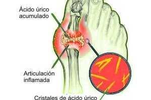 el acido urico produce fiebre acido urico sangre sintomas acido urico alto en el embarazo