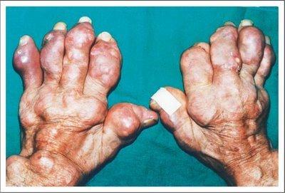 alimentos para bajar el acido urico en la sangre tanto cae la gota en la piedra acido urico y vertigos