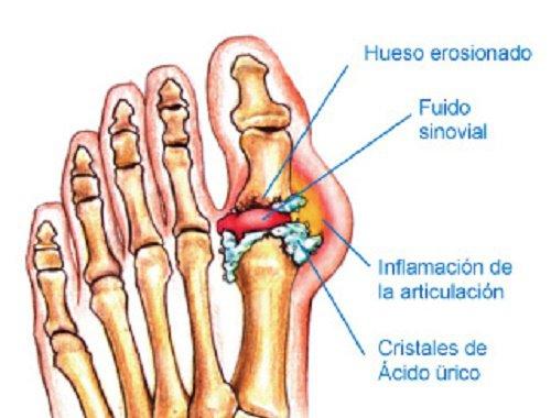 que comidas producen acido urico cuales son los sintomas de acido urico bajo alimentos buenos para reducir el acido urico