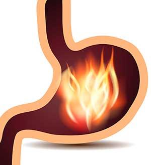 Cara Menyembuhkan Gastritis Kronis Dan Akut
