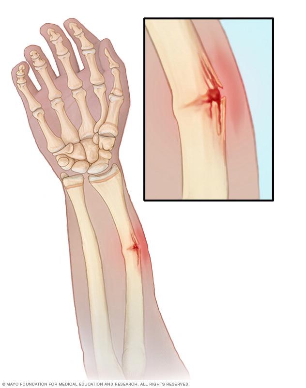 Six Major Bone Breaks