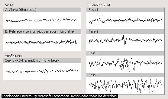 Resultado de imagen para MOR EEG