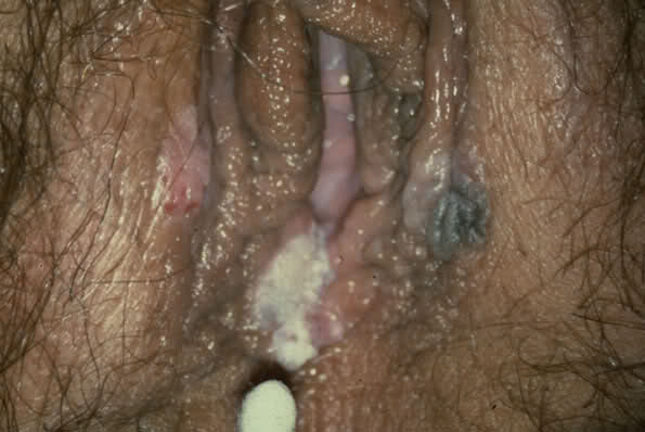 Gonorrhea Info For Android