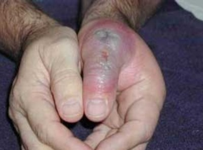 Necrotizing fasciitis hand