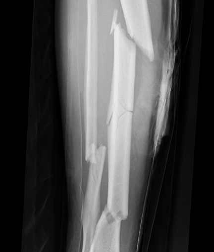 untitled on emaze, Human Body