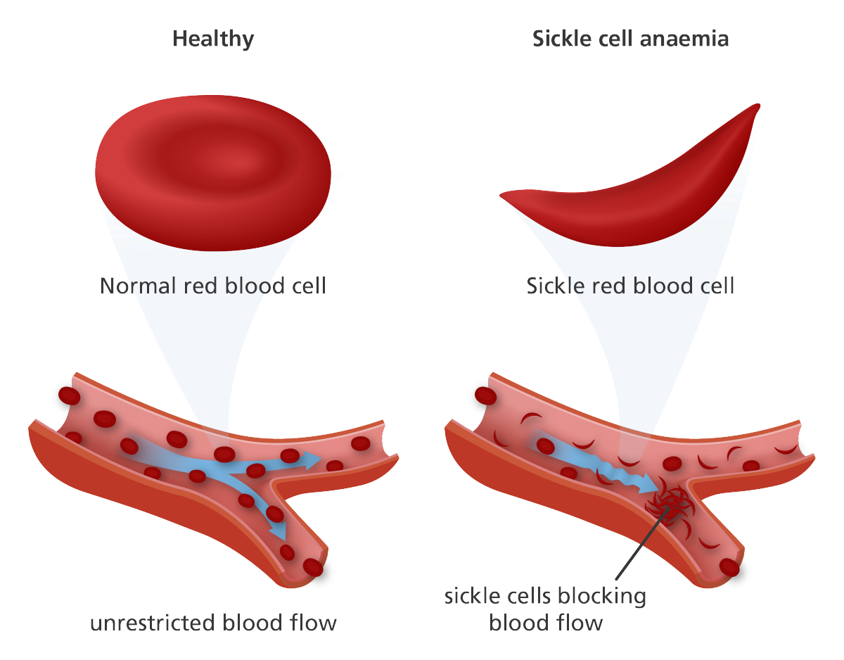 sickle cell anemia on emaze the red blood cells that are deformed do not carry as much oxygen throughout the body and have a shorter life span that healthy red blood cells