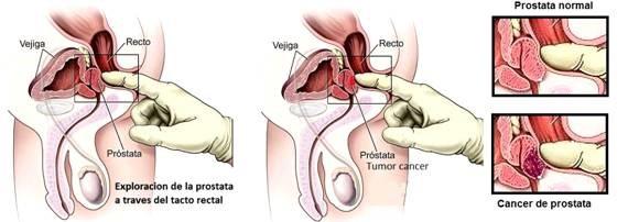 puede irritar la próstata