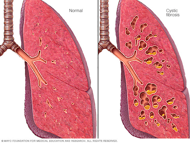 an analysis of diagnosis and treatment in patients with cystic fibrosis Diagnosis: testing: cftr mutation analysis on how many mutations are tested and the ethnic origin of the patient of cystic fibrosis by mutation analysis.