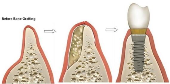 Kết quả hình ảnh cho ghép xương implant