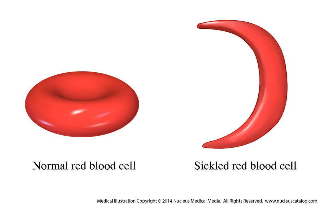essays on sickle cell Sickle cell anemia essay examples - sickle cell anemia sickle cell anemia is caused by a defect in the gene that controls the production of normal hemoglobin, which is an iron-containing protein in red blood cells that transports oxygen from the lungs to body tissues.