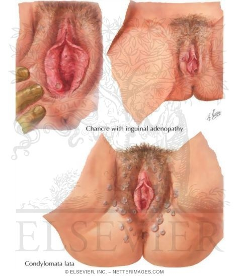 sores itchy vaginal