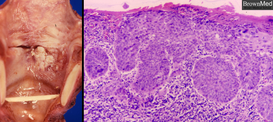 ass-undifferential-carcinoma-in-young-girl