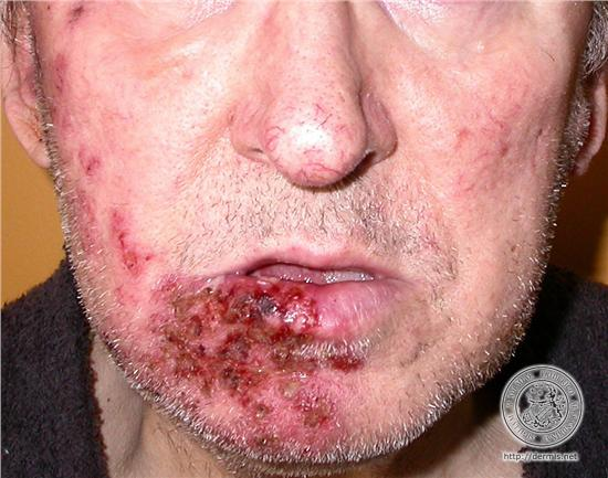 pictures-facial-herpes-zoster