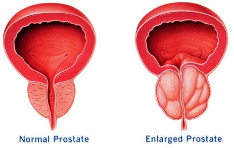 una prostata grande