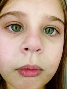 Is Cat Eye Syndrome Sex Linked