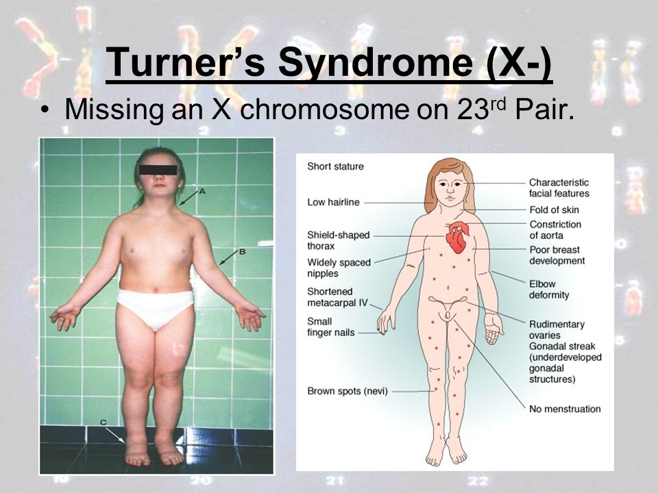 turner and klinefelter syndrome Klinefelter's syndrome (ks) is a sex chromosomal disorder like turner's syndrome while ks individuals have an extra x chromosome making the total number of chromosomes 47 in number, a person.