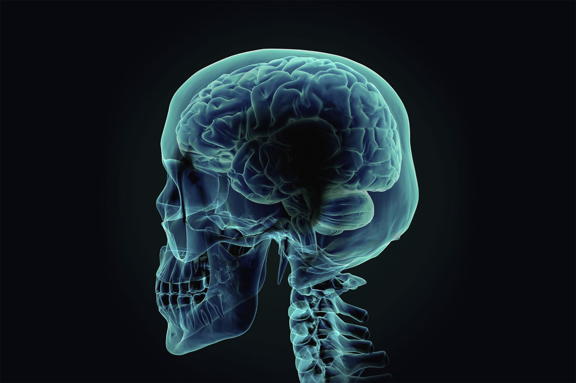 x ray definition – slushtokyo, Human Body