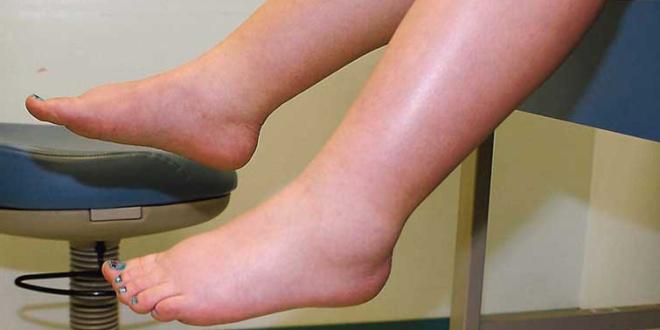 De pies tobillos y manos hinchazon